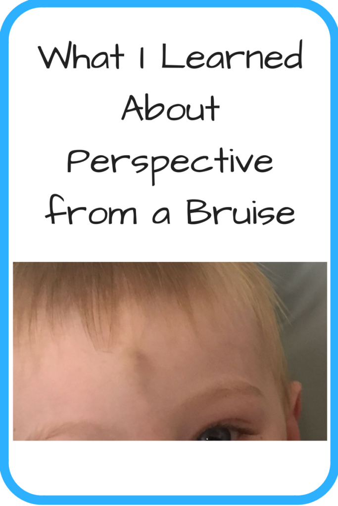 What I Learned About Perspective from a Bruise. (Photo: Young white boy's head with a bruise in the middle of his forehead)